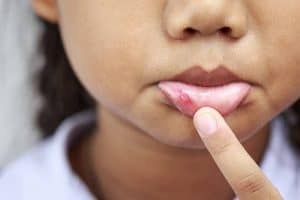 canker sore mouth child