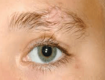eyebrow hair loss what to do about your thinning eyebrows eyebrows falling out causes hair loss not growing back