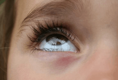 Dandruff in Eyebrows, Dry Skin, Get Rid, Remove, Naturally ...
